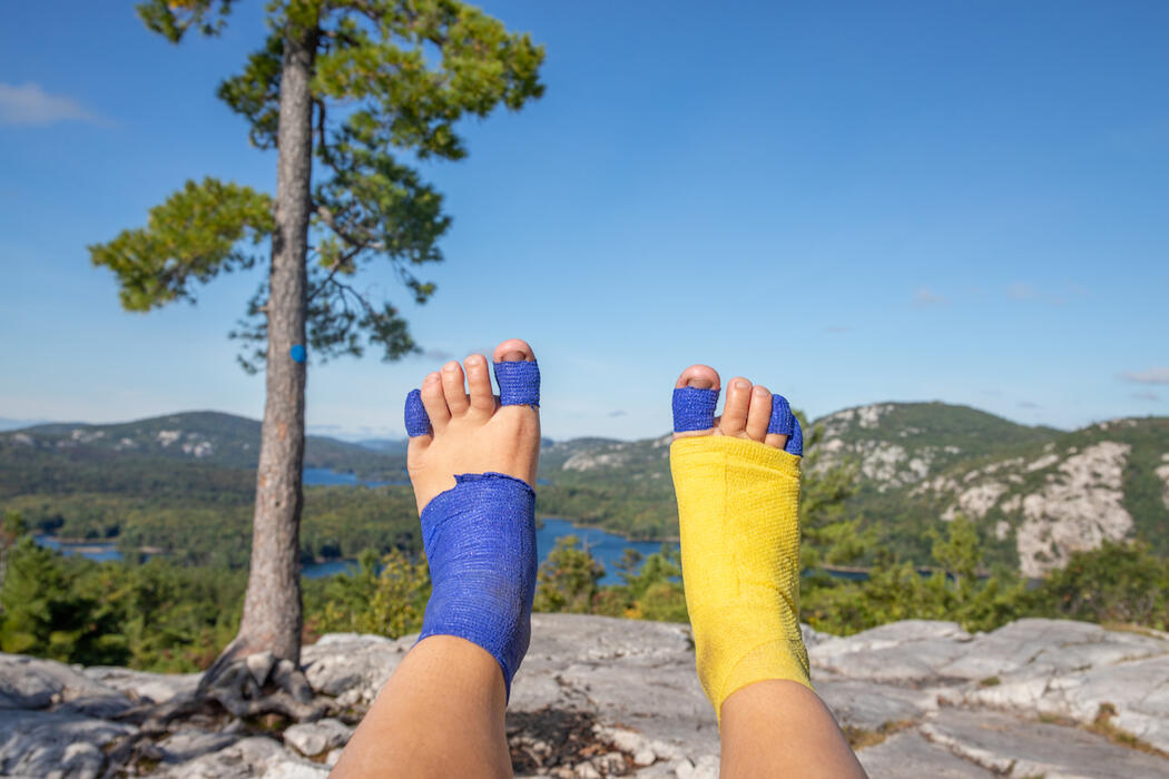 Looking at 2 feet covered in blue and yellow bandages.